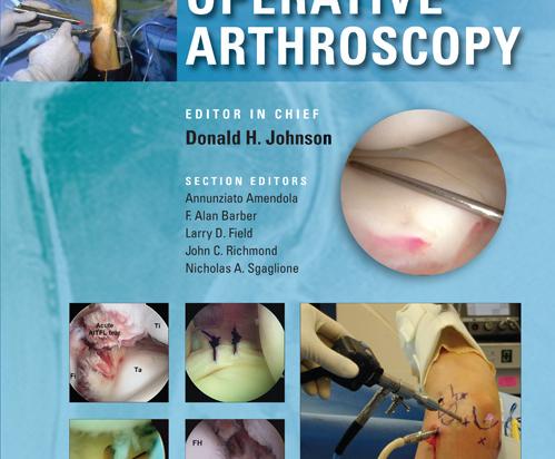 Operative Arthroscopy 4th edition