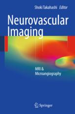 Neurovascular Imaging