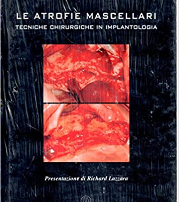 Le Atrofie Mascellari