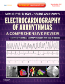 Electrocardiography of Arrhythmias