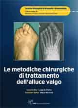 Le Metodiche Chirurgiche di Trattamento dell'Alluce Valgo