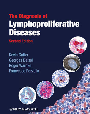 The Diagnosis of Lymphoproliferative Diseases, 2nd Edition