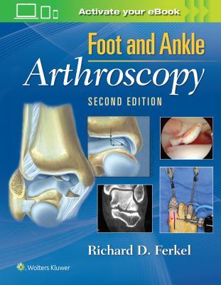 Foot & Ankle Arthroscopy, 2e