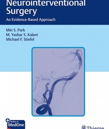 Neurointerventional Surgery