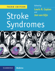 Stroke Syndromes, 3ed