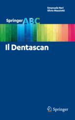 Il Dentascan