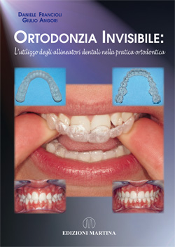 ORTODONZIA INVISIBILE: L'utilizzo degli allineatori dentali nella pratica ortodontica