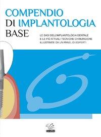Compendio di Implantologia Base