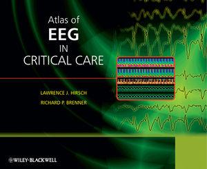 Atlas of EEG in Critical Care