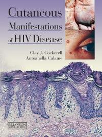 Cutaneous Manifestations of HIV Disease