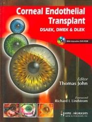 Corneal Endothelial Transplant DSEAK, DMEK and DLEK