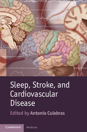 Sleep, Stroke and Cardiovascular Disease
