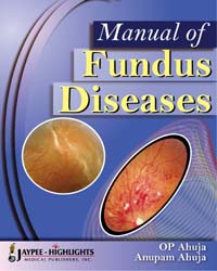 Manual of Fundus Diseases